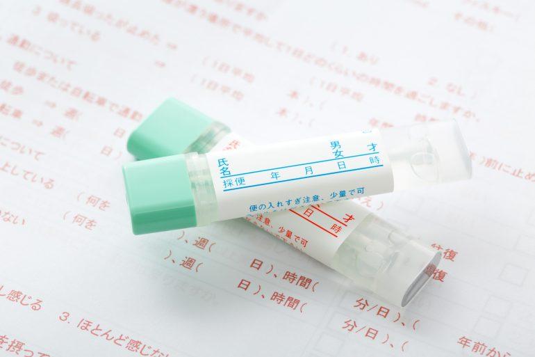 便潜血検査とは